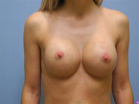 breast reconstruction dr talmor png 1024x768
