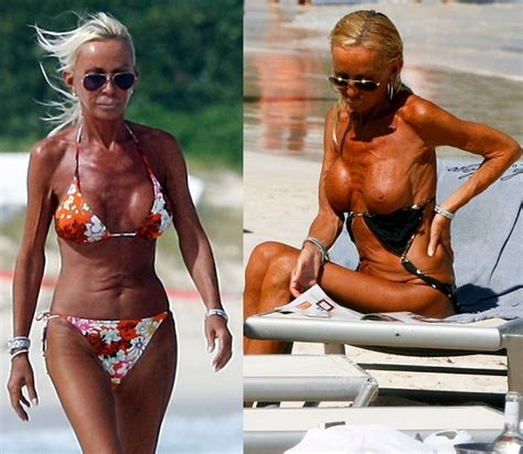 Am i too old for a breast augmentation plastic surgery jpg 574x500