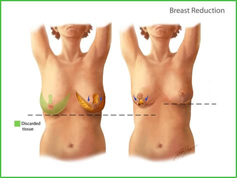 Breast cancer treatment and recovery jpg 1000x752